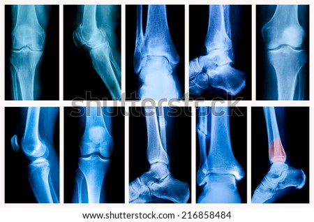 X-ray of the knee and ankle - stock photo