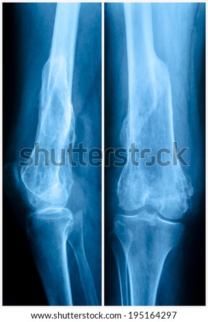 X-ray of the knee joint and lower femur