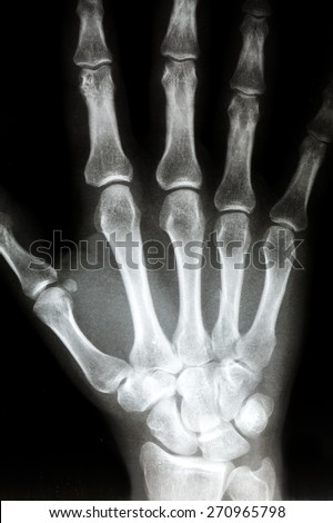 X Ray of the Right hand. Bones in the hand