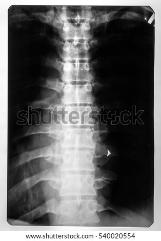 X-ray of the spinal card