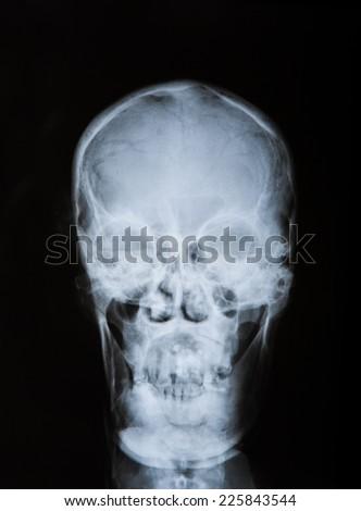 x-ray off skull, front - stock photo