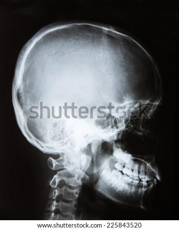 x-ray off skull,side - stock photo