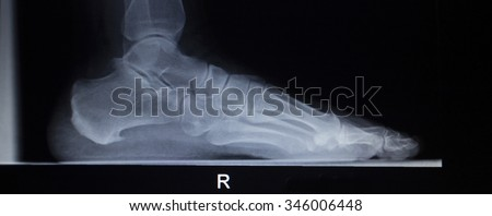 X-ray orthopedic medical CAT scan of painful foot injury in traumatology hospital clinic showing load weight bearing. - stock photo