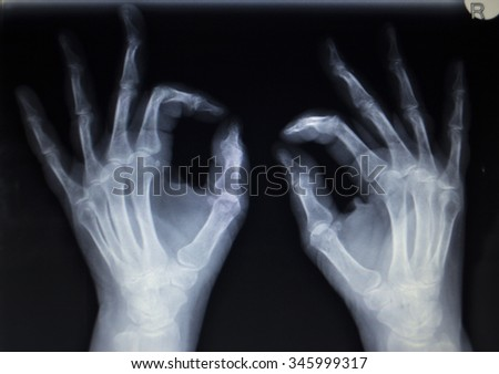 X-ray orthopedic medical CAT scan of painful hand fingers thumb injury in Traumatology hospital clinic.