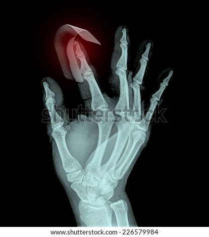 x-ray pain hand ( Hand Postero-anterior ) on black background