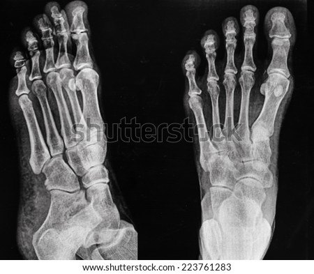 x ray pair of feet from different views