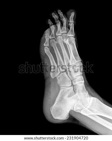 x-ray photo of feet - stock photo