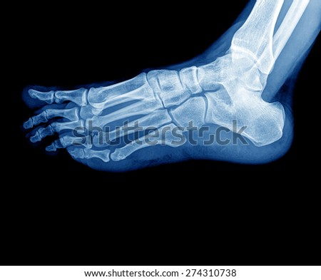x-ray photo of feet - stock photo