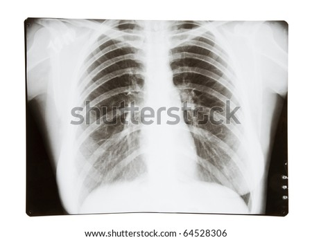 X-ray picture of lungs - stock photo