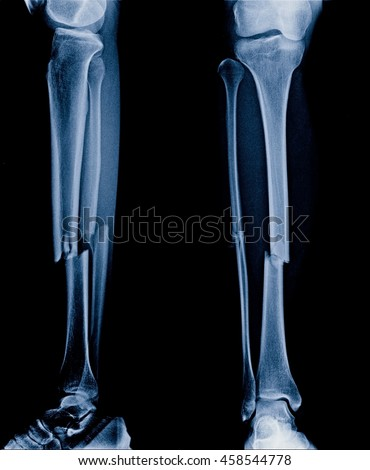 Bone Fracture Stock Images, Royalty-Free Images & Vectors ...