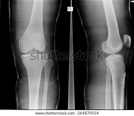 X-ray picture showing knee. - stock photo