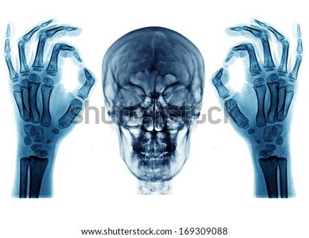 x ray picutre - stock photo