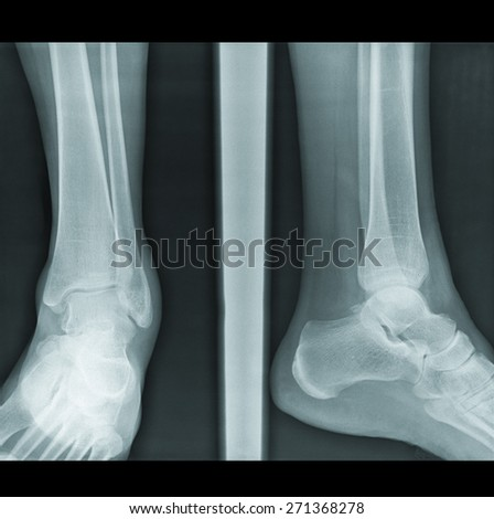 X-Ray radilogy image of injured woman legs
