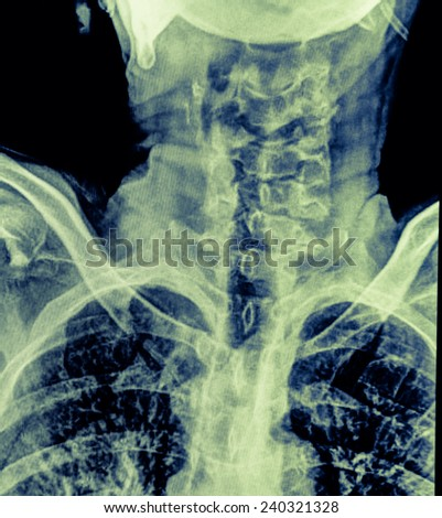 X-Ray radiography of a human cervical spine and parts of the skull - stock photo
