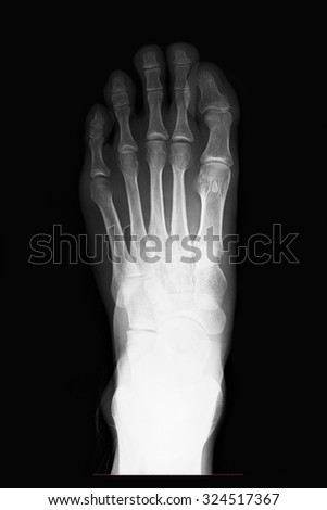 X-ray right human foot AP view