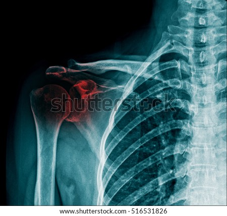 Xray Right Shoulder Show Injury Bone Stock Photo Royalty Free