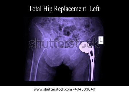 X-ray scan image of hip joints with orthopedic hip joint replacement implant head and screws in human skeleton in brown gray tones. Scanned in orthopedics traumatology hospital  - stock photo