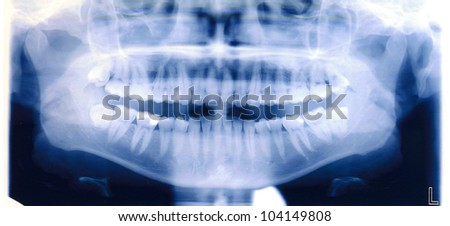 x-ray shoot of human mouth and teeth - stock photo