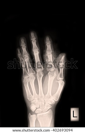 X-ray show closed fracture finger thumb left hand