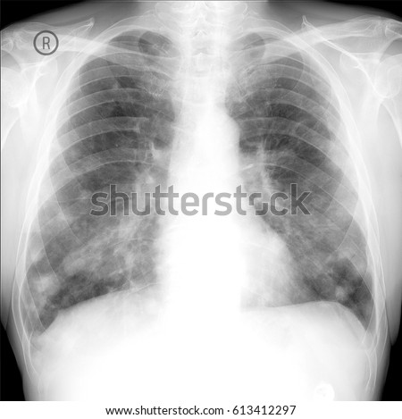 x-ray show lung cancer. Multiple lung metastases.