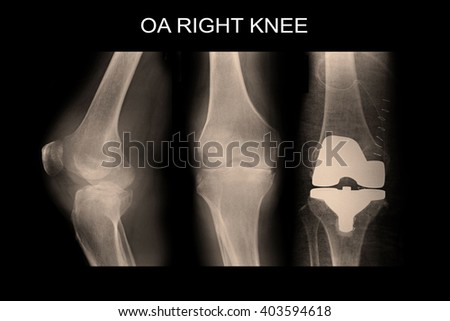 X-ray show OA Right Knee and post opration cemented TKR Right Knee - stock photo