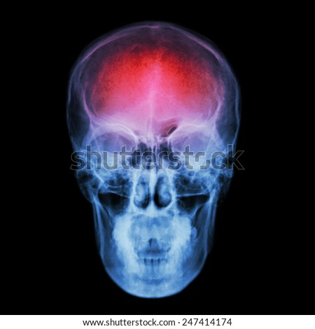 X-ray skull and Stroke ( cerebrovascular accident (CVA) ) - stock photo