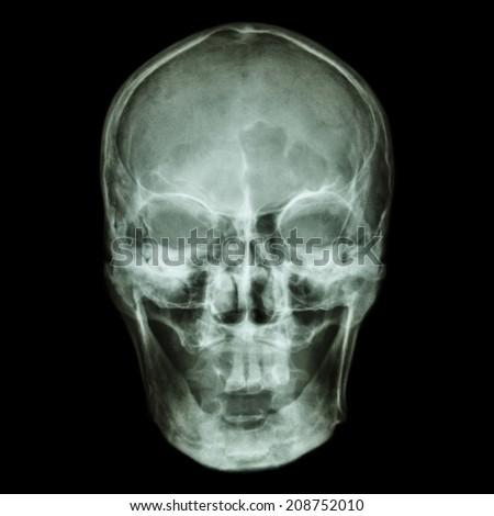 X-ray skull (Asian) - stock photo