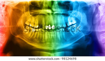 X-ray teeth mandible human skull. Panoramic negative photo facial image of mouth young adult male. Picture was taken on digital system equipment for dental diagnostic examination upon clinical checkup - stock photo