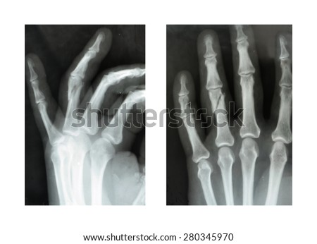 X-rayfractured ring finger hands