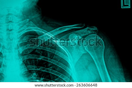 x-rays image of the painful or injury shoulder joint - stock photo