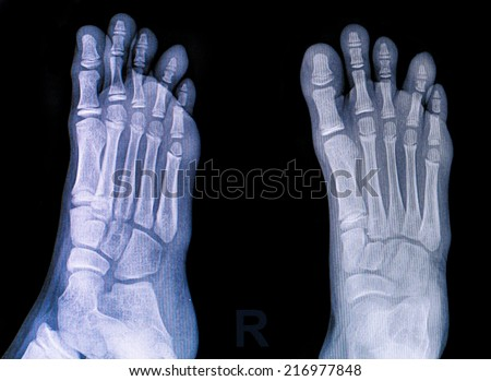 X-rays of both feet  - stock photo