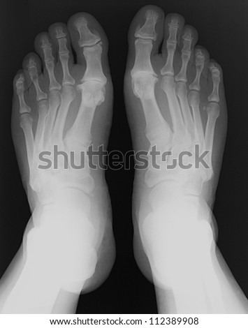 X-rays of both feet of an adult man with visible damage - stock photo
