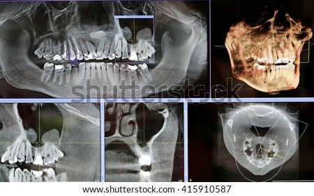 X-rays of the oral cavity