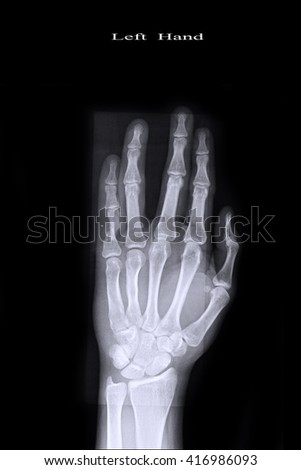 xray both hand and fracture little finger left hand