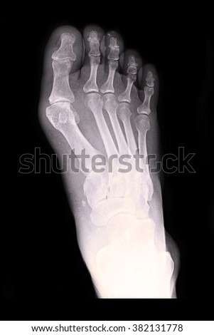 Xray fracture Right foot - stock photo
