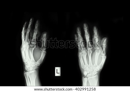 Xray left hand and closed fracture finger thumb left hand - stock photo