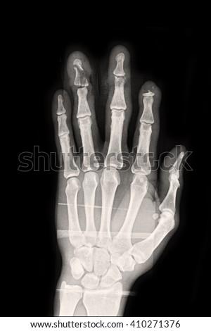 Xray Left Hand Show Fracture Ring Stockfoto (Lizenzfrei) 410271376 ...