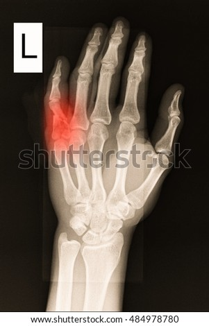 xray left hand show closed fracture little finger
