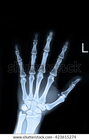 Xray left hand ; Show fracture middle finger left hand