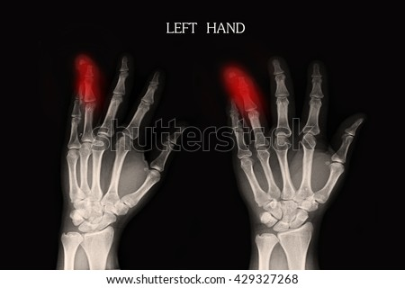 Xray Left Hand ; Show fracture ring finger left hand  - stock photo