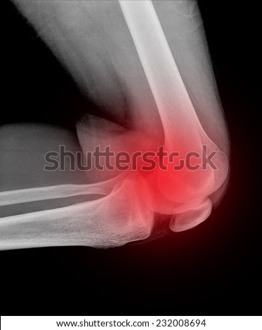 Xray of a human knee isolated - stock photo