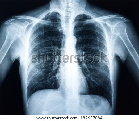 Xray of a human torax isolated - stock photo