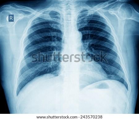 xray of chest - stock photo