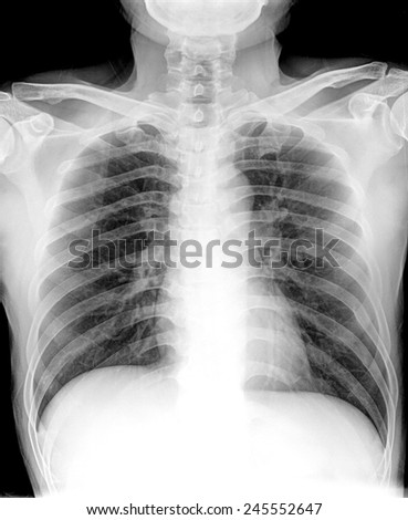 xray of Lung cancer, pleural effusion