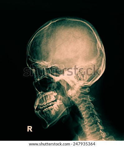 xray of neck , side view - stock photo