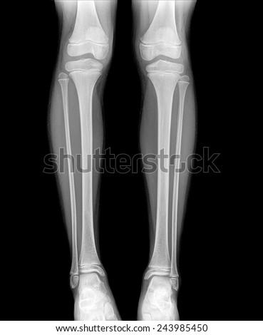 xray of normal leg childe image - stock photo