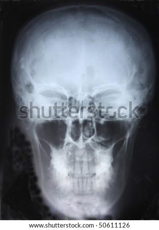 Xray of Skull - stock photo
