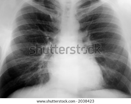 Xray of the chest with a positive exposure. - stock photo