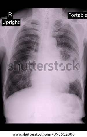 Xray protable show lung abscess  - stock photo
