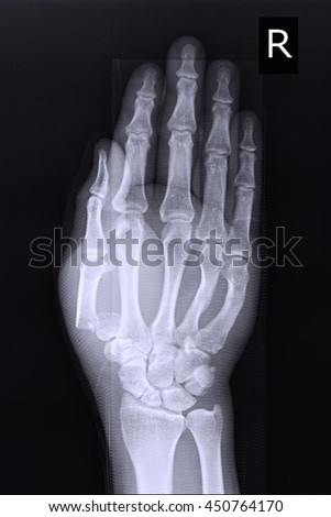 xray right hand show fracture thumb